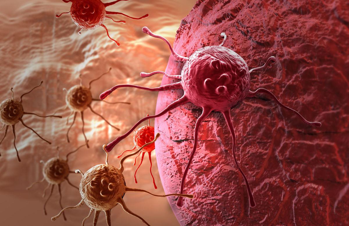 Ha a daganatsejtek kilépnek az emlőből: áttétes mellrák